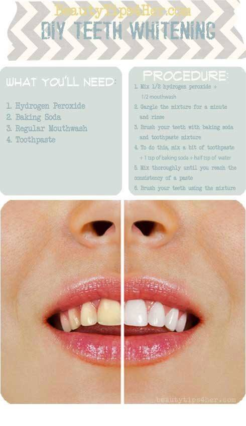 homemade-teeth-whitener