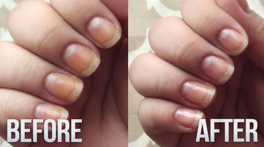 Natural Way To Whiten Yellow Nails - A Quick Trick to Make your ...