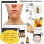 7 Effective Homemade Cleansers to Cure Acne