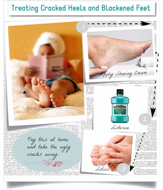 Natural Dry Skin Remedies For Feet