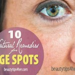Home Remedies For Age Spots – Age Graciously with Natural Remedies
