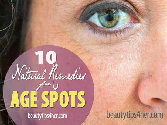 natural-remedies-for-age-spots