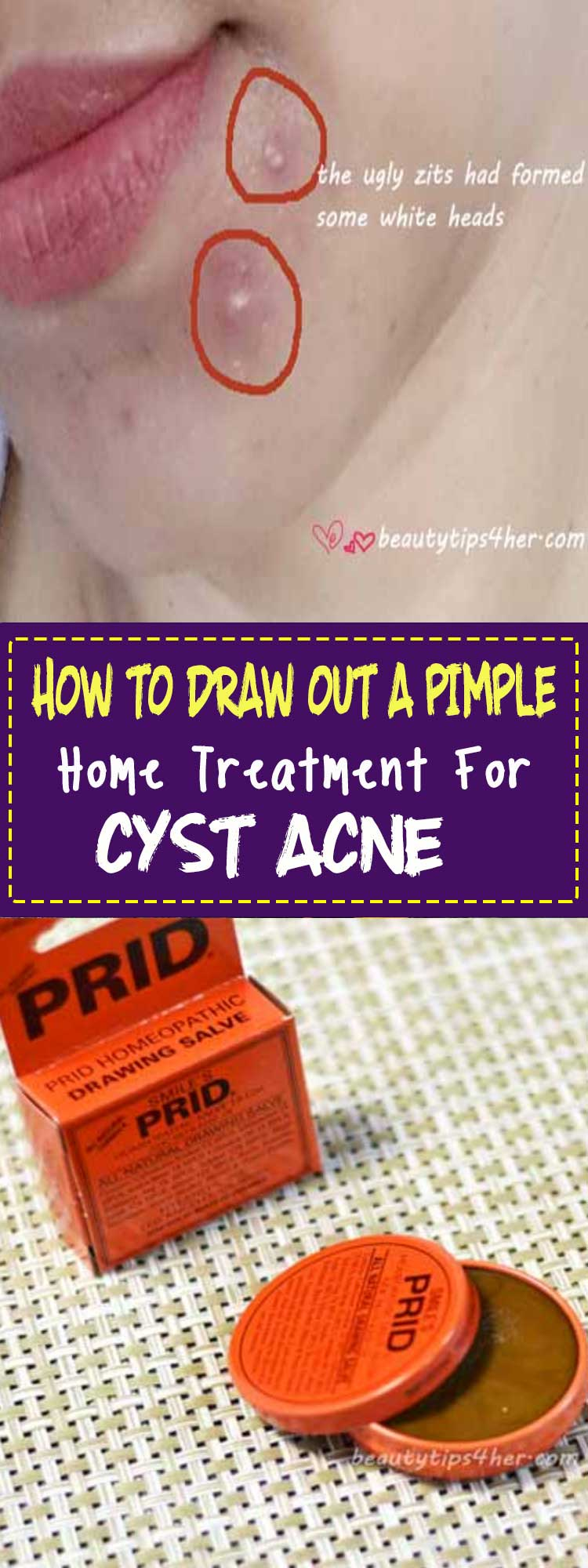 Natural Remedies For Head Cysts