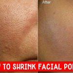 shrink facial pores