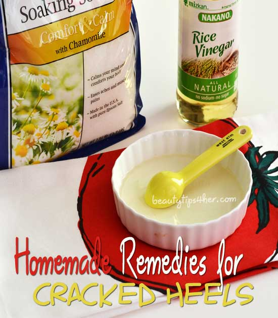 Homemade-remedies-for-cracked-heels