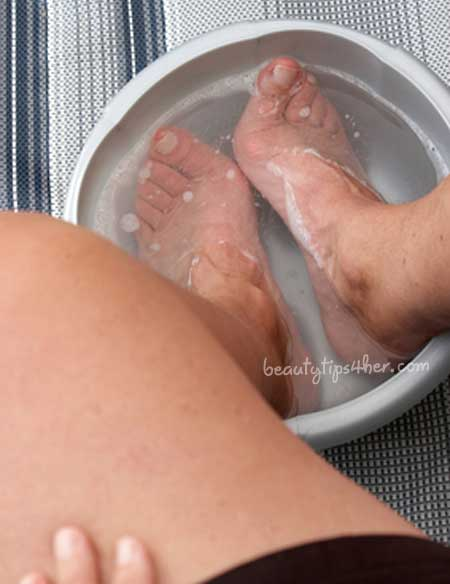 cracked-heels home remedies