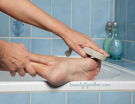 cracked-heels-home-remedies