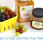How to Fade Post Acne Marks – Dealing with Post Acne Breakout Aftermaths