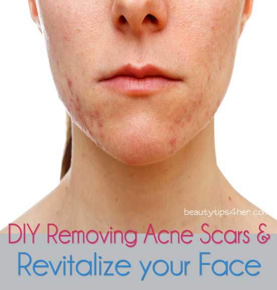eliminate-acne-scars