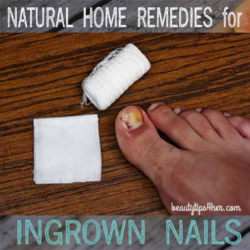 Ingrown-toenails-