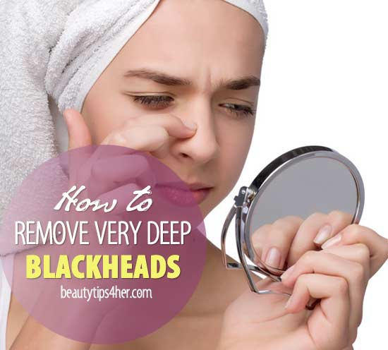 how to get rid of deep whiteheads naturally