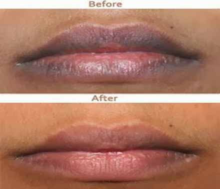 Pink Lips Please - How to Get Rid of Dark Lips Naturally - Natural