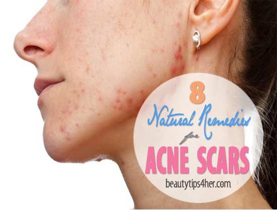 natural-remedies-for-acne-scars