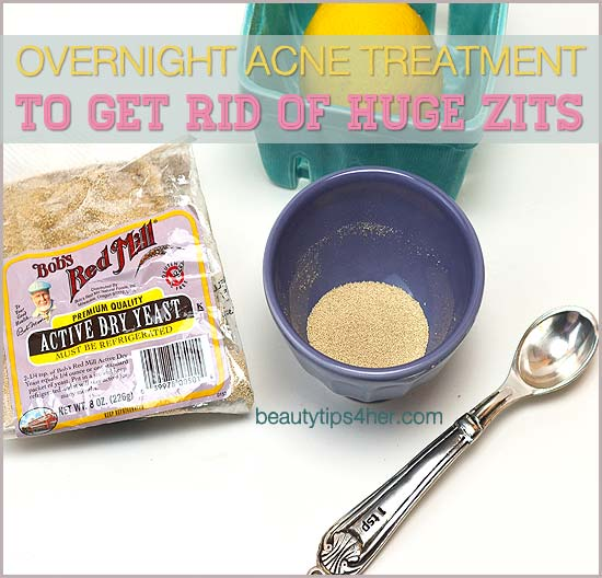overnight-treatment-for-zits