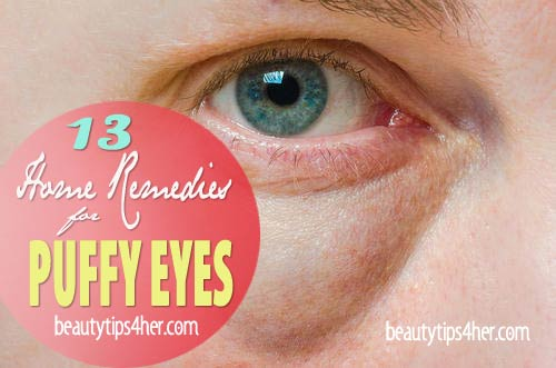 Puffy-eyes-home-remedies