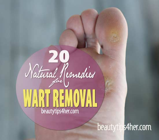 Warts-removal-home-remedies