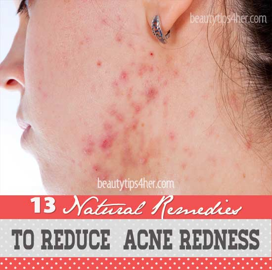Natural remedies for redness on face