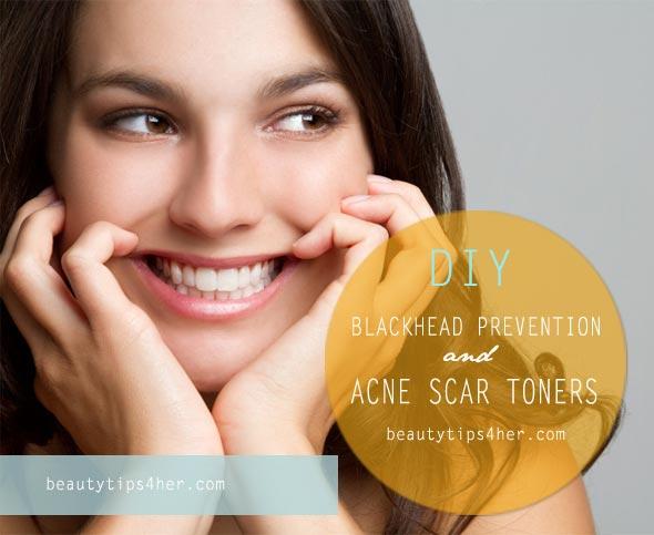 acne-toners