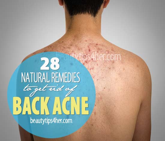 how to clear back acne overnight