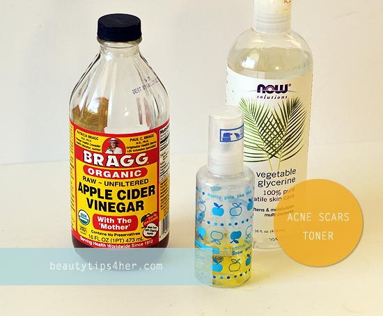 toner-for-acne-prone