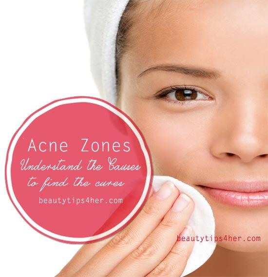 acne-zones
