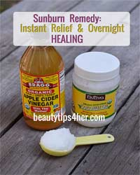 Thumbnail image for Heal Sunburn Overnight with Two Simple Ingredients