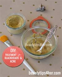 Thumbnail image for DIY Treatment for Blackheads and Acne