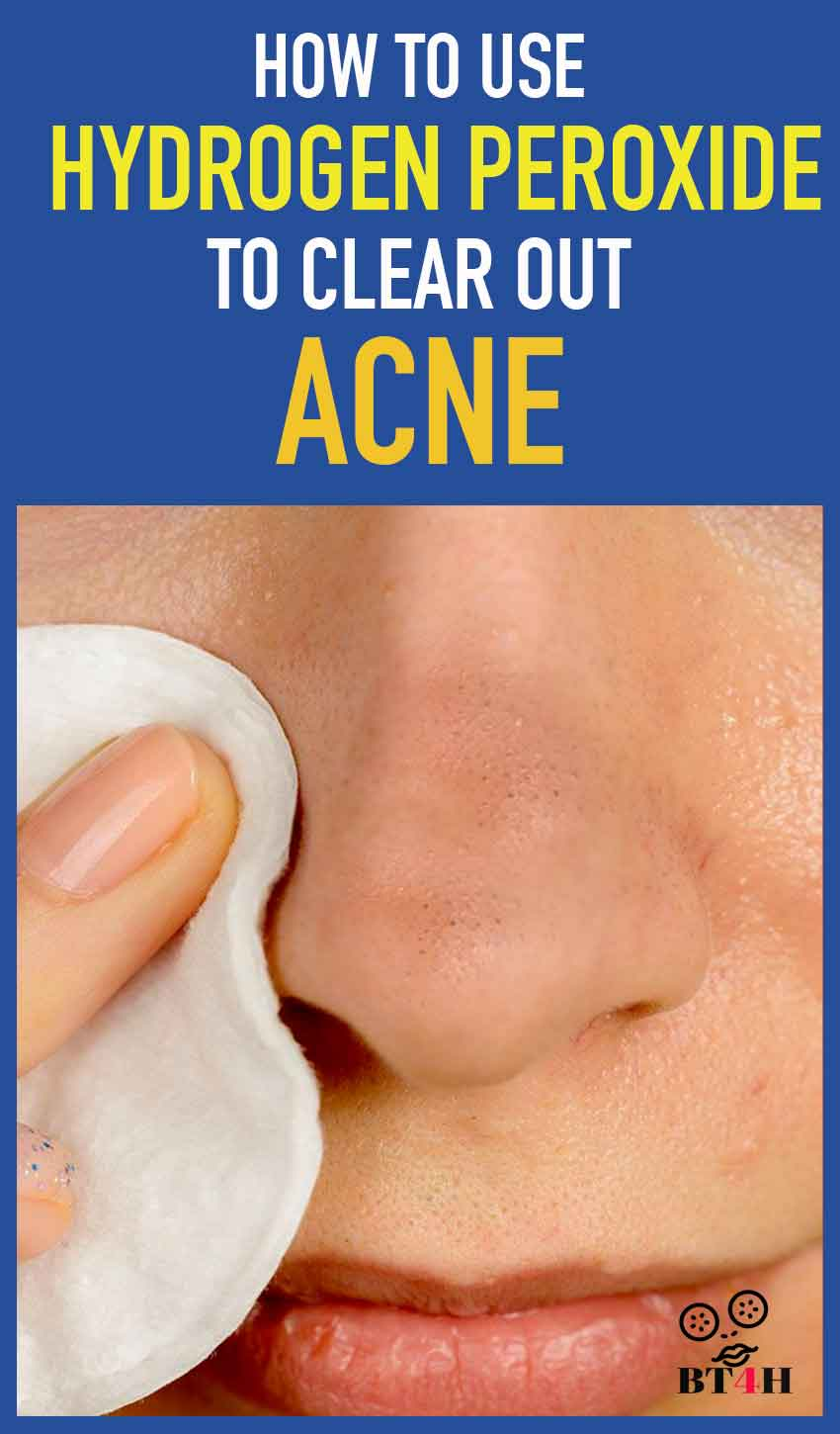 Hydrogen peroxide to clear acne - Several remedies can be used to make the redness and inflammation go away. Hydrogen peroxide is one of the best