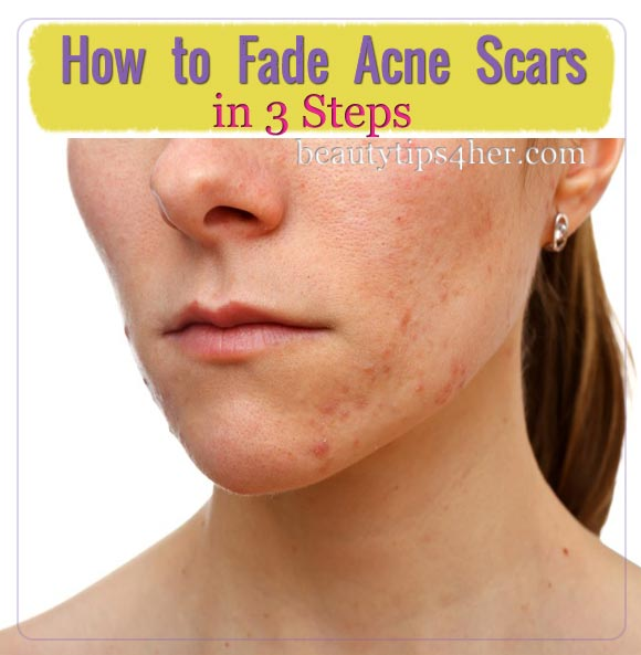 Acne scarring treatments facial steamer sensitive skin face