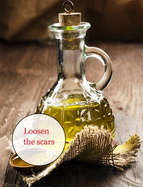 loosen-the-scars-1