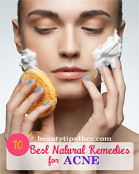 Thumbnail image for 10 Best All Natural Remedies For Acne