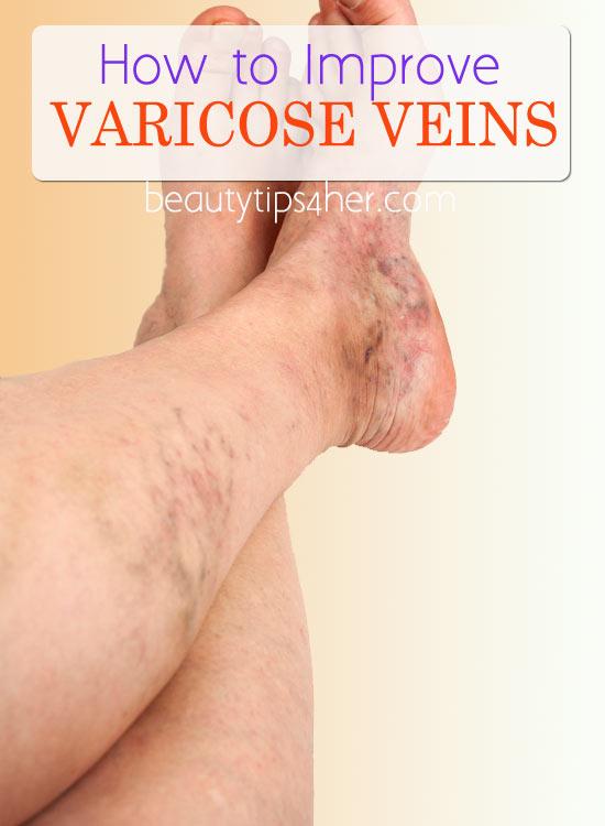 how-to-improve-varicose-veins-1