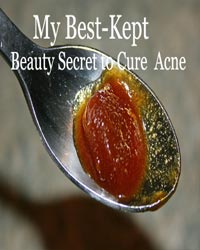 Thumbnail image for My Best-Kept Beauty Secret to Cure Acne (not a secret anymore)