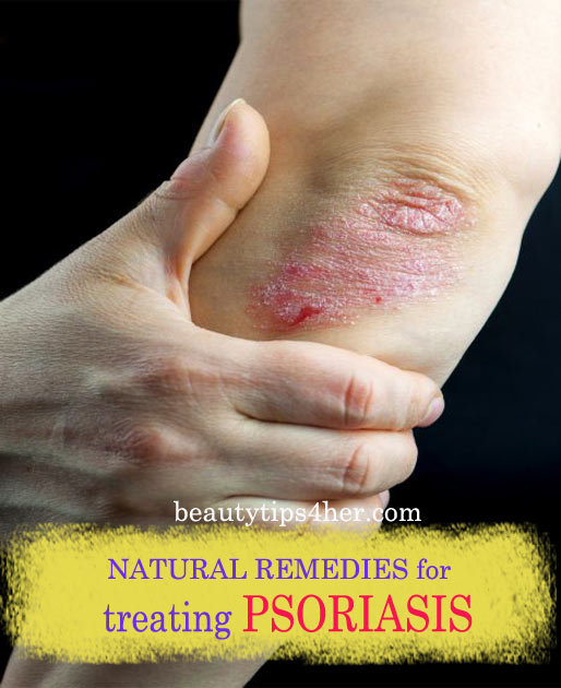 Psoriasis-natural-remedies-1