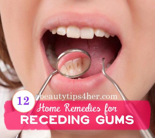 RECEDING-gums-1