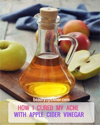 Thumbnail image for How I Cured My Acne With Apple Cider Vinegar
