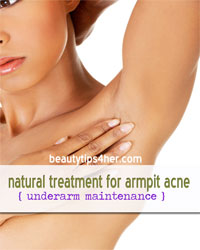 Thumbnail image for All Natural Treatment For Armpit Acne