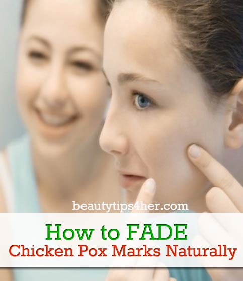 Tips For Naturally Fading Chicken Pox Scars Natural Beauty Skin Care