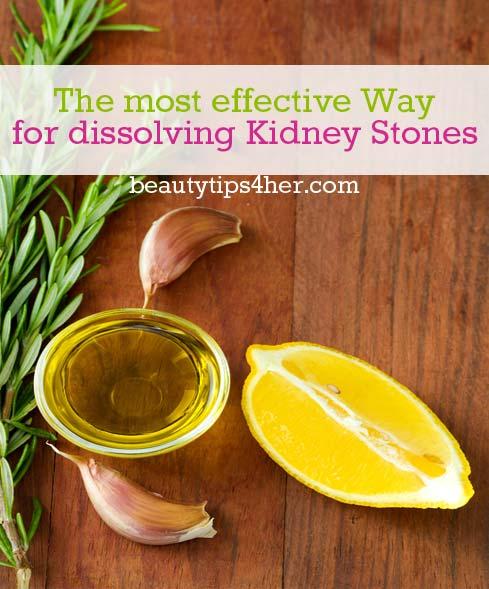kidney-stones-1