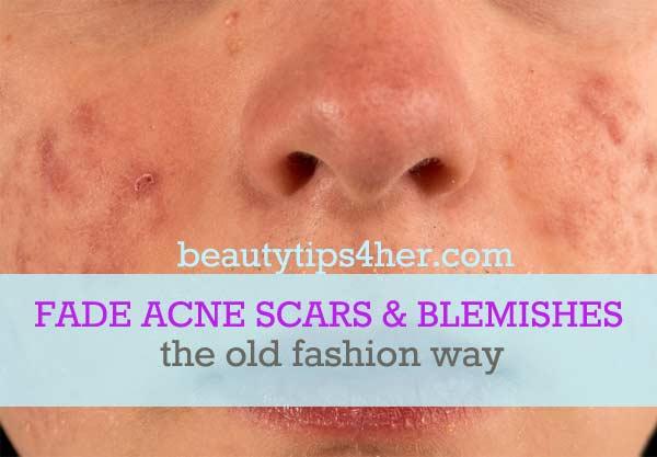 Fade-acne-scars-1