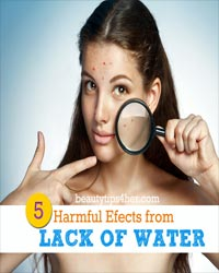 Thumbnail image for Lack of Water – 6 Ways It's Hurting Your Body