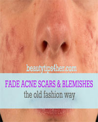 Thumbnail image for 3 Old-Fashioned Treatments for Fading Blemishes and Acne Scars