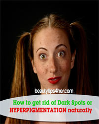 Thumbnail image for Bye, Bye Dark Spots – Get Rid of Hyperpigmentation Naturally