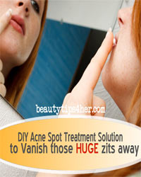 Thumbnail image for Zits-Be-Gone – Your Natural, DIY Acne Spot Treatment