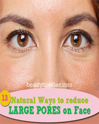 Thumbnail image for 13 Top Home Remedies to Help Combat Unsightly, Large Pores