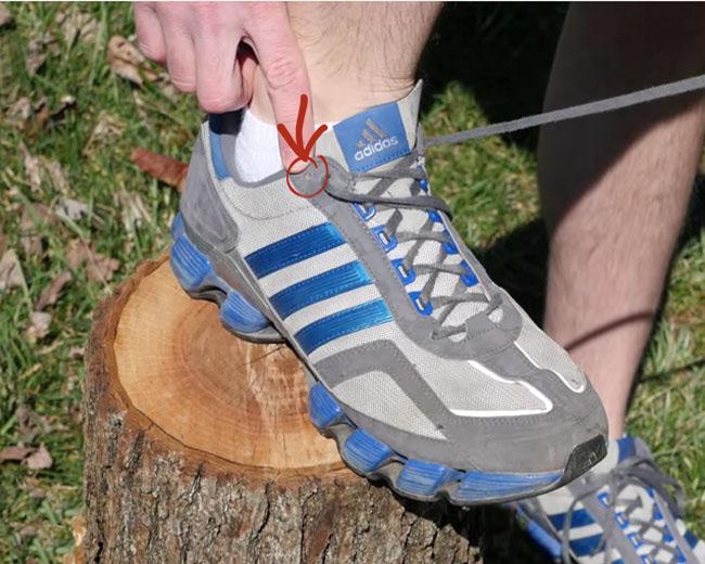 blisters on bottom of feet