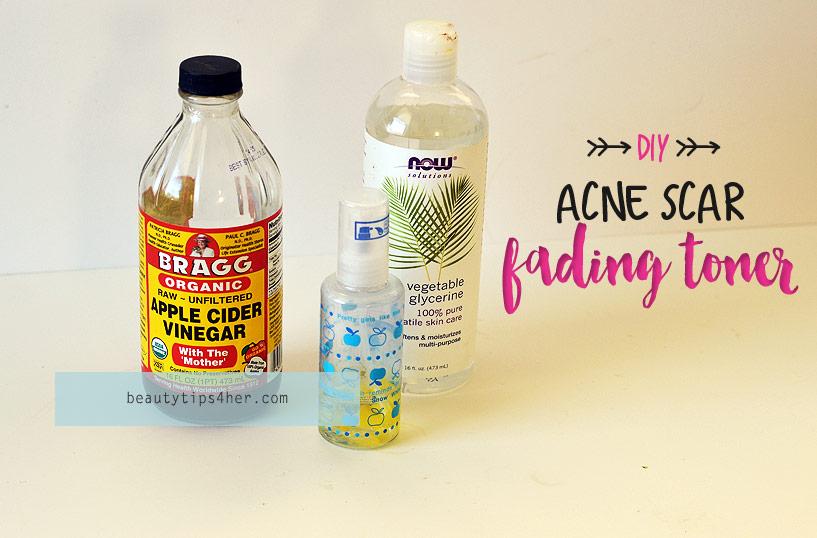acne-scar-fading-toner-1