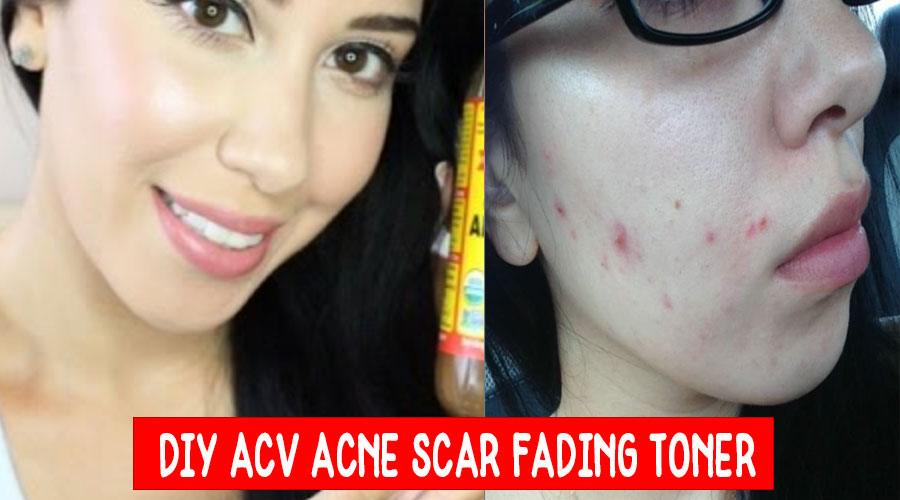 Homemade Apple Cider Vinegar Acne Scar Fading Toner
