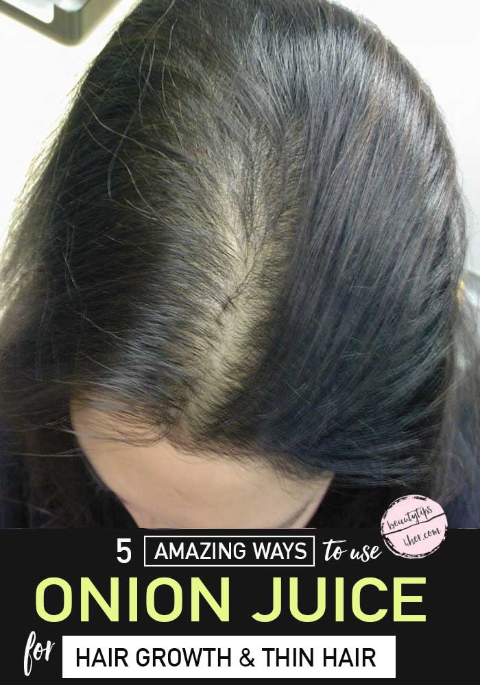 This natural remedy might not smell appealing, but it has been a successful treatment for hair loss for decades.  It has been shown to help increase hair growth and reverse grey hair when applied to the scalp.