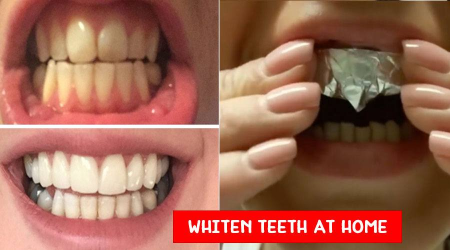 How To Make Teeth Whitening Paste At Home Natural Beauty Skin Care